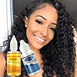 Lace Wig Glue and Remover Hair Replacement Strong Hold Adhesive Hair Invisible Bonding Glue for Lace Hairpieces Wig Closure Frontal Toupee System (2 Bottles, Glue and Remove)