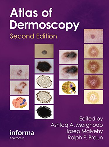 An Atlas of Dermoscopy (English Edition)