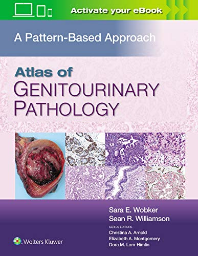 Compare Textbook Prices for Atlas of Genitourinary Pathology: A Pattern Based Approach First Edition ISBN 9781496397669 by Wobker MD  MPH, Sara E.,Williamson MD  FASCP, Sean R.