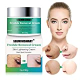 Best Face Bleaching Creams - Freckle Cream,Dark Spot Corrector,Skin Lightening Cream,Freckle Remover,Bleaching Cream Review