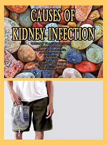 Causes of Kidney Infection: Urinary Tract Infection, Kidney Stones, Enlarged Prostate, Swollen Tubes, Catheter, Diabetes, Vesicoureteral Reflux, Urethral Stricture, Nerve Damage
