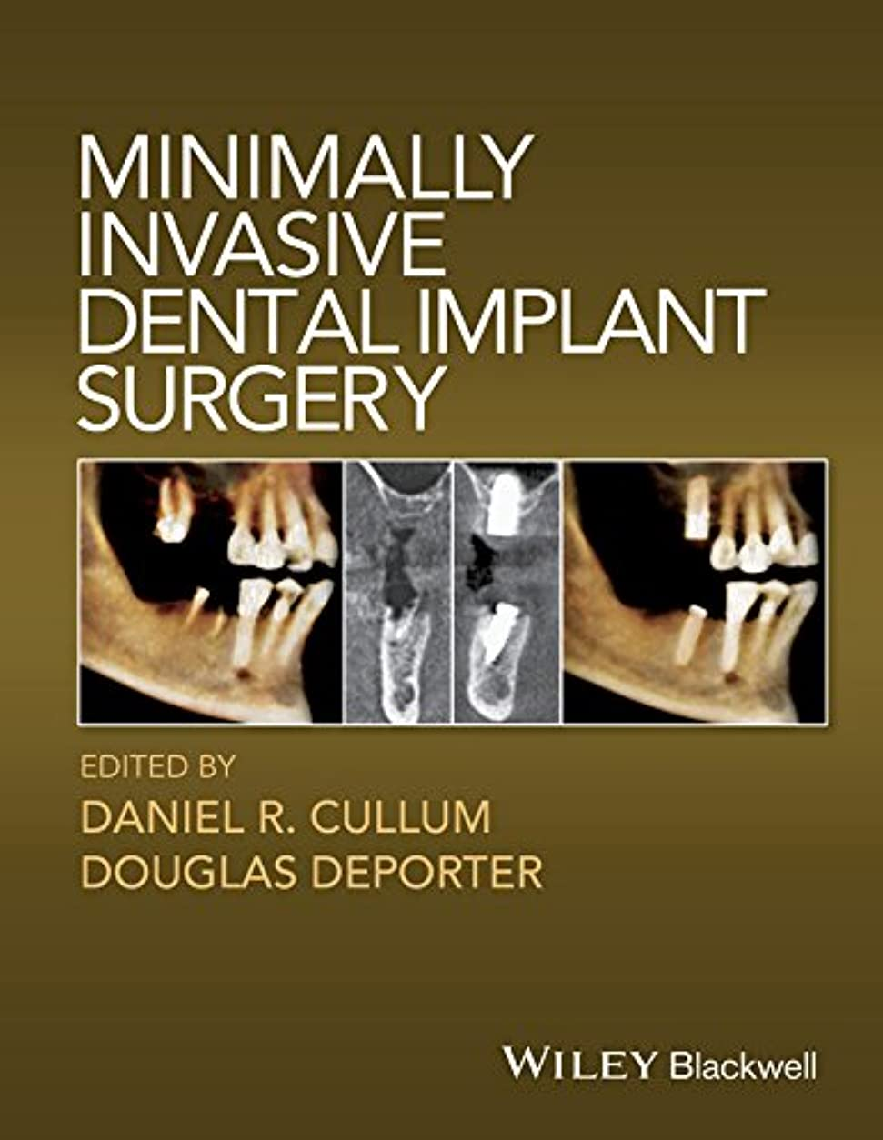 鳩絶壁ネックレットMinimally Invasive Dental Implant Surgery (English Edition)