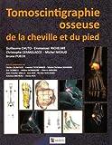 Tomoscintigraphie osseuse de la cheville et du pied