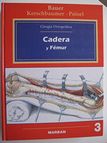 Cirugía ortopédica