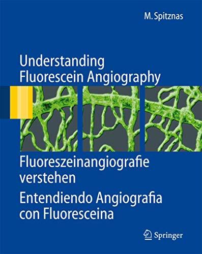 Understanding Fluorescein Angiography, Fluoreszeinangiografie verstehen, Entendiendo Angiografía con Fluoresceína: Fluoreszeinangiografie Verstehen, Entendiendo Angiografia Con Fluoresceina