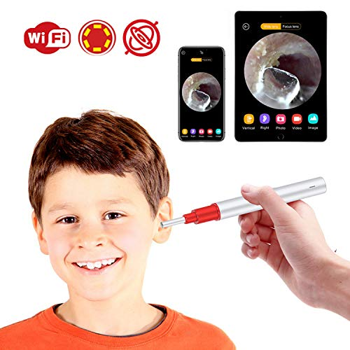 Ear Camera,Bebird 1080P FHD WiFi Ear Scope,Wireless iPhone Ear Scope Camera with 3-Axis Gyroscope, USB Ear Endoscope Temperature Control, Compatible with Android iOS Smartphone and Tablet