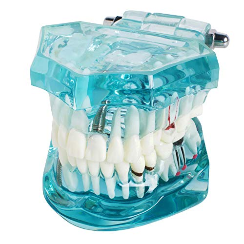 Teeth Model, Study Tooth Transparent Adult Pathological Tooth Model, Teaching Tools for Student (Shipping from USA)