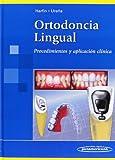 Ortodoncia lingual: Procedimientos y aplicación clínica