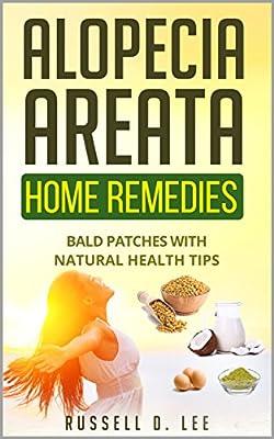 Alopecia: Alopecia Areata Home Remedies…Bald Patches With Natural Health Tips (Alopecia, Hair Loss, Hair Loss Cures, Hair Loss Protocol, Hair Loss Solutions)