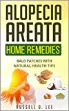 Alopecia: Alopecia Areata Home Remedies…Bald Patches With Natural Health Tips (Alopecia, Hair Loss, Hair Loss Cures, Hair Loss Protocol, Hair Loss Solutions)