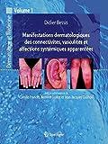 Manifestations Dermatologiques des Connectivites, Vasculites et Affections Systemiques Apparentees.