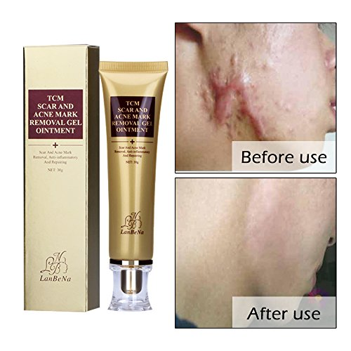 Acne Scar Removal Cream Stretch Marks Face Skin Repair Cream Shrink Pores Gel-Fade Scar Marks Acne Skin Care (30ml)