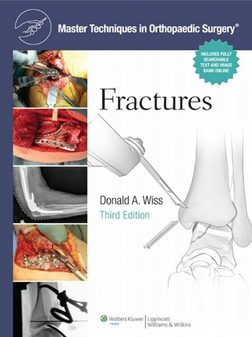 方程式弾薬重大Fractures (Master Techniques in Orthopaedic Surgery) (English Edition)