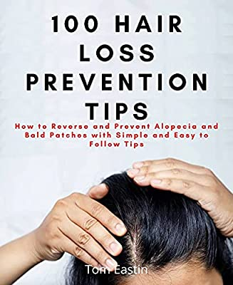 100 HAIR LOSS PREVENTION TIPS: How to Reverse and Prevent Alopecia and Bald Patches with Simple and Easy to Follow Tips