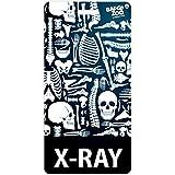 X-Ray Badge Buddy - Black - Skeleton Themed - Radiology Vertical Badge Id Card - by BadgeZoo