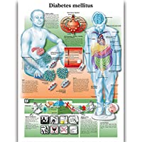 Diabetes Mellitus 壁の解剖ポスター 看護学生教育用解剖学的ポスターチャート 防水キャンバス 医師の愛好家の子供の啓発教育のための医学疾患マップ (24x32inches)
