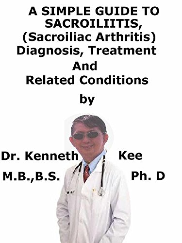 A  Simple  Guide  To  Sacroiliitis (Sacroiliac Arthritis),  Diagnosis, Treatment  And  Related Conditions