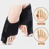FanProd Bunion Corrector, Bunion Splint, Bunion relief, Orthopedic bunion corrector, Bunion correcetor big toe, Bunion brace for women, Toe brace, Big toe straightener, Toe corrector, Toe splint