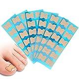 Patch à ongles incarné disponible en 4 tailles pour s'adapter au pied et facile à coller sans besoin de colle, processus de correction délicat. 72pcs
