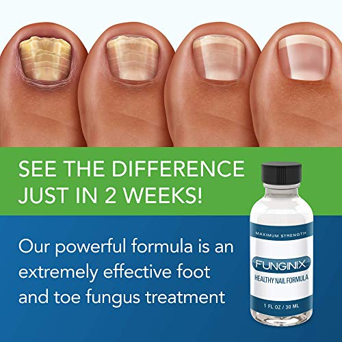 FUNGINIX Healthy Nail Formula - Finger and Toe Fungus Treatment, Made in USA, Eliminate Fungal Infections, Maximum Strength Solution (2 Bottles)