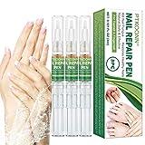 Tratamiento de Uñas, Hongos Uñas Pies, Pluma de Reparación de Uñas, reparación de uñas, Uñas...