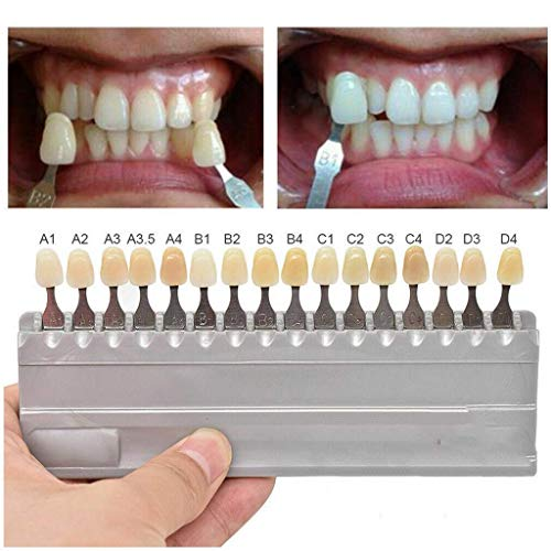 1 Set 16 Colors 3D Teeth Whitening Shade Guide Porcelain - Tooth Bleaching Shade Chart Mold - Tracking & Comparing - Dental Equipment Dentist Material - Professional or Household Oral Care (White)