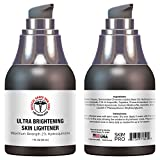 Hydroquinone Skin Lightener & Dark Spot Corrector - SkinPro Medical Grade Skin Care, Fades Uneven Skin Tone and Spots, Skin Lightening Cream for Face and Body