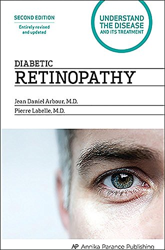 Diabetic Retinopathy: Understand the Disease and Its Treatment PDF Books