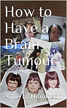 How to Have a Brain Tumour by [Anne E. Thompson]