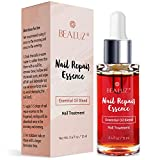 Nail Fungus Repair Treatment, Fingernail and Toenail Fungus Repair Solution - Maximum Strength Fungal Solution - Restores Healthy Appearance of Discolored & Damaged Nail