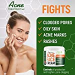 Acne treatment products Acne Treatment Natural Cream – Made in USA – Acne