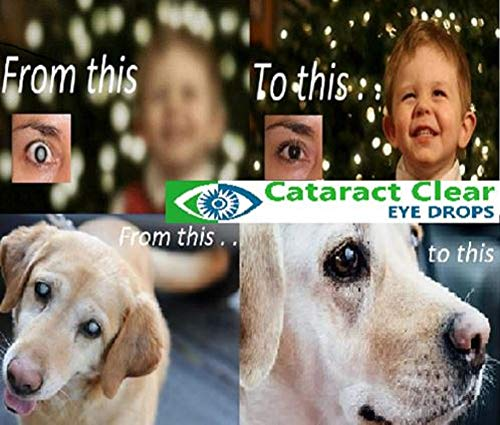 2 x 15ml (0.5 fl oz) Bottles of The Best Cataract Treating Eye Drops Anywhere, 2% N-Acetyl-Carnosine. Twice as Strong as Most Similar Products. Holistic & Proven Gently Effective on People & Pets!