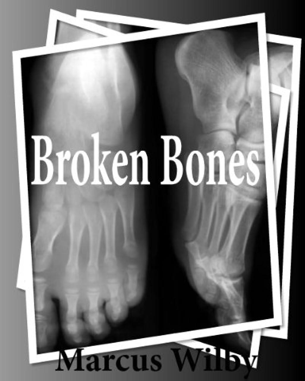 敬意を表する高潔な代数Broken  Bones (English Edition)