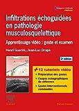 Infiltrations échoguidées en pathologie musculosquelettique - Apprentissage vidéo : geste et examen