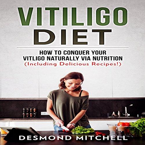 Vitiligo Diet: How to Conquer Your Vitiligo Naturally via Nutrition audiobook cover art