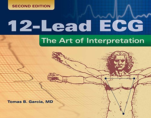 Compare Textbook Prices for 12-Lead ECG: The Art of Interpretation: The Art of Interpretation Garcia, Introduction to 12-Lead ECG 2 Edition ISBN 9780763773519 by Garcia, Tomas B.