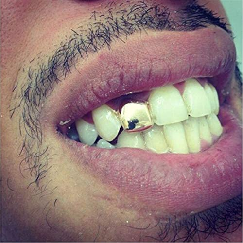 Clip on gold teeth _image4