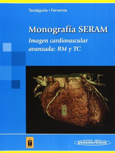 Monografía SERAM: Imagen cardiovascular avanzada: RM y TC (Tardáguila / Ferreirós)