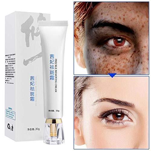 KiMiLIKE 30ml Anti Blemish Crème Spots Suppression Pimple Pommade Scar Mark Crème éclaircissante Anti Blemish rousseur Crème pour Les Femmes