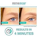 Remescar - Paupières tombantes - Crème contour des yeux liftante anti-poches - Crème contour des yeux antirides pour hommes & femmes à l'efficacité cliniquement prouvée #3