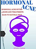 HORMONAL ACNE: Hormonal Acne Myths, 4 Signs And Treatments To Hormonal Acne Forever, Back To Natural Beautiful Skin