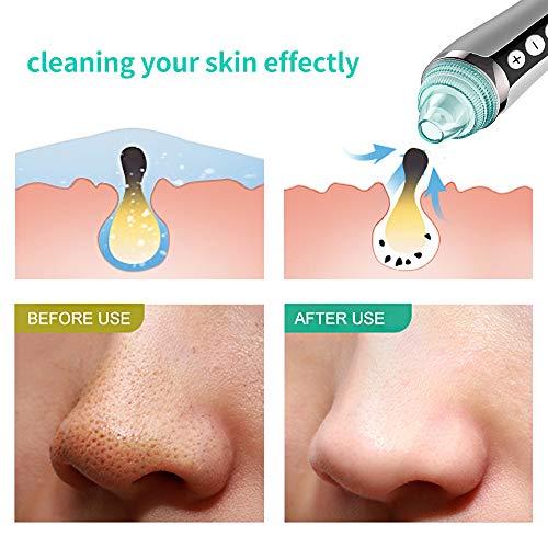 Phenitech Pore Vacuum & Blackhead Remover Vacuum