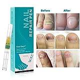 Zoom IMG-1 trattamento unghie fungo piedi funghi