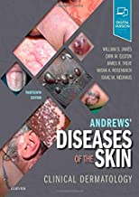 Best andrews book of dermatology Reviews