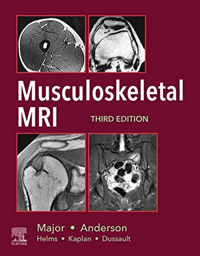 Musculoskeletal MRI E-Book (Kindle Edition)