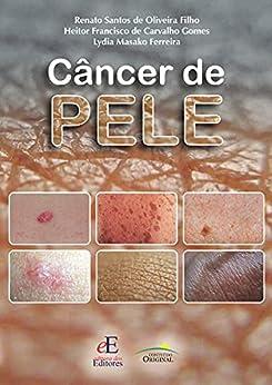 Câncer de pele por [Renato Santos de Oliveira Filho, Heitor Francisco de Carvalho Gomes, Lydia Masako Ferreira]