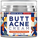 Best Pimple Creams - Butt Acne Clearing Cream, Thigh Acne Clearing treatment Review