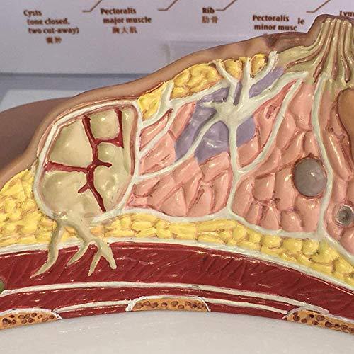 TKer Anatomisches Modell des Brustquerschnitts, Weibliche Brustpathologie Anatomisch, Für die medizinische Ausbildung