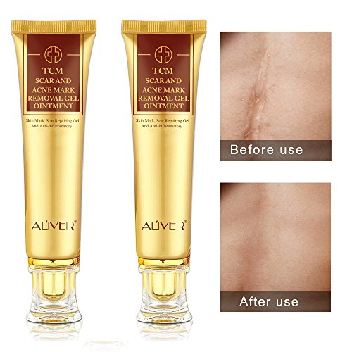 2 pack Aliver TCM Scar and Acne Mark Removal Gel Cream Ointment, Anti-inflammatory and Rapairing,Acne Scar Removal Cream Skin Repair Acne Spots Treatment Blackhead Stretch Marks