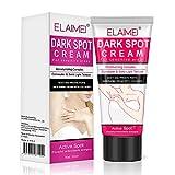 Best Body Whitening Creams - Dark Spot Corrector Cream, Underarm Cream Natural Body Review